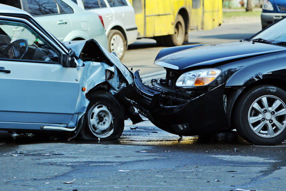 5 common head injuries sustained in car accidents